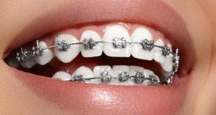 لبنات التقويم اللي حاطين تقويم اسنان يفتح جزء ثاني
