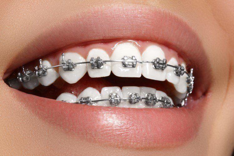 لفتيات التقويم الي حاطين تقويم اسنان يفتح جزء ثاني