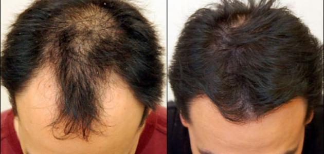 اللي تبغى دواء يوقف تساقط الشعر