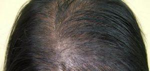 شعرك مصلع من قدام جبهتك  كبار حل دائم و حل مؤقت تفضلن