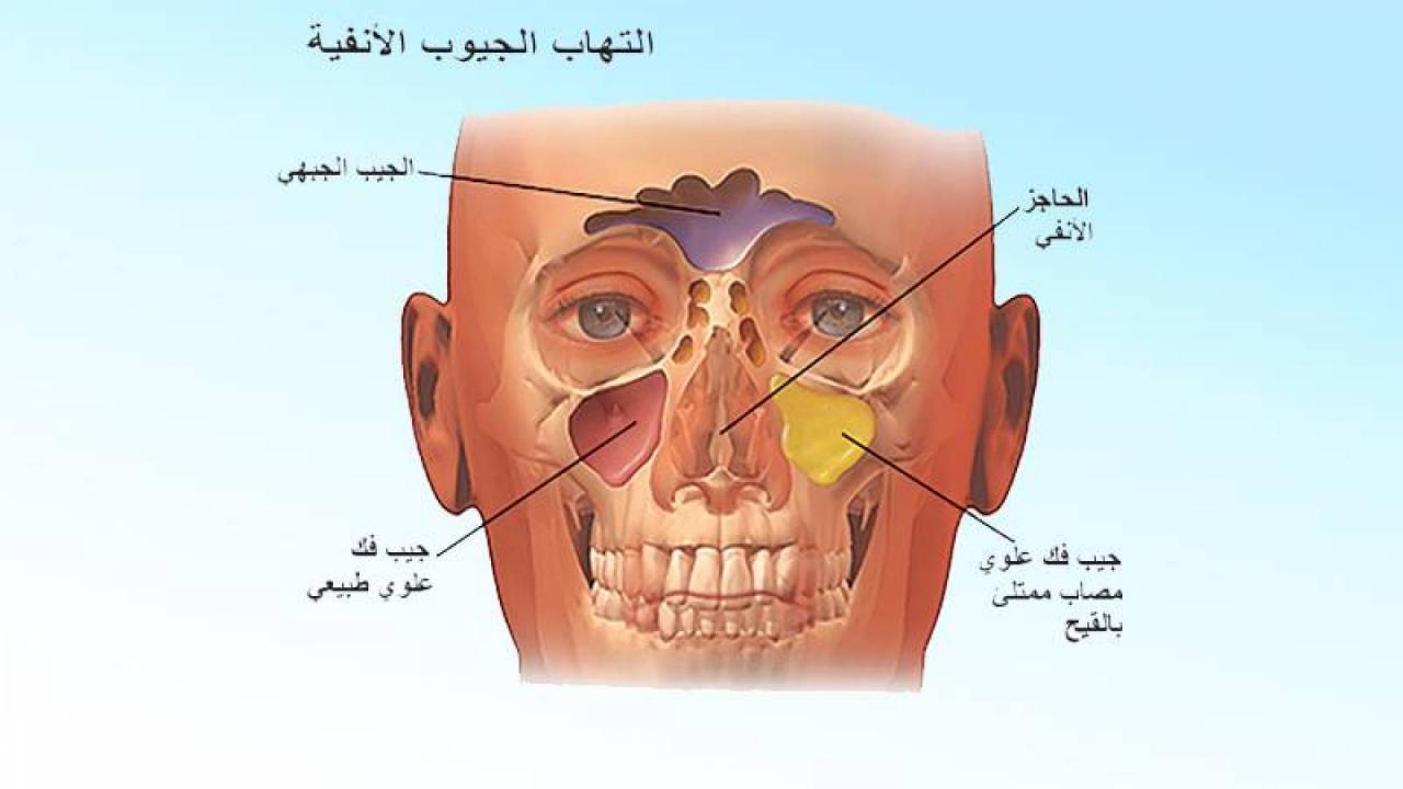 صورة علاج للجيوب الانفية فعال باذن الله 472