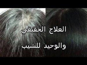 صورة لقيته لقيته سبب الشيب وعلاجه باذن الله unnamed file 35 300x225